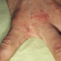 Заболевание Чесотка