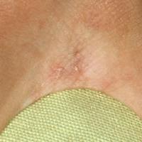 Чесотка [инфекционное заболевание кожи]