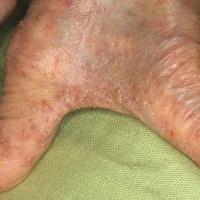 Чесотка - инфекционное заболевание кожи