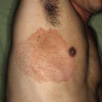 Дерматомикоз гладкой кожи