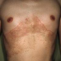 Дерматомикоз гладкой кожи (стригущий лишай)