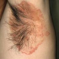 Дерматомикоз кожи