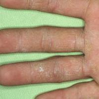 Дерматофития кистей (Грибковая кожная инфекция)
