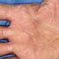Болезнь кожи дерматофития