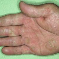 Дерматофития кистей кожное заболевание